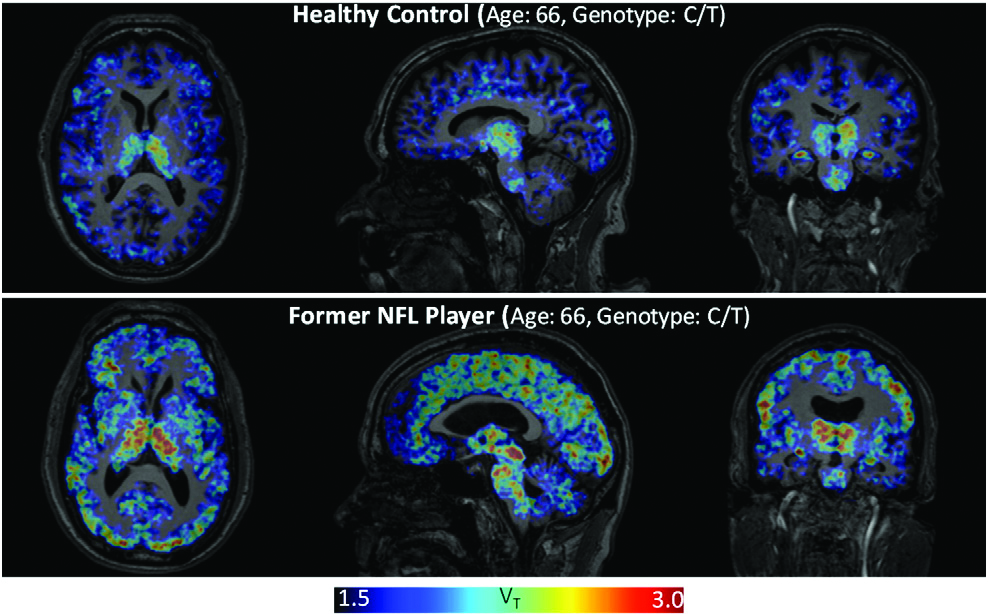 Comparison of brain of NFL player to healthy brain